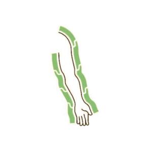 Bracciale CPS Mesis: schema della camere parzialmente sovrapposte