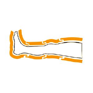 Gambali CPS Mesis: schema della camere parzialmente sovrapposte