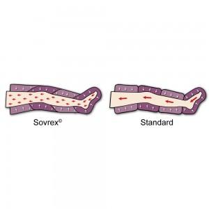 Speciale sistema Sovrex e confronto con le camere Standard